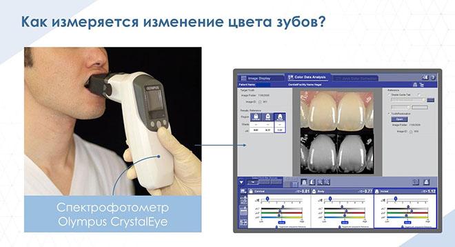 Что такое IQOS? Как он влияет на цвет зубов?